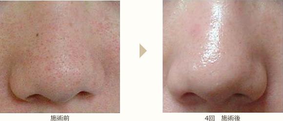 鼻まわり/角質・毛穴ケア の施術前と4回施術後の比較
